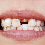 Почему ломаются зубы