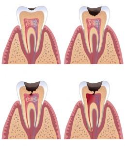 Пульпит -</p>витие зубной боли