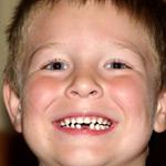Cмена молочных зубов у детей
